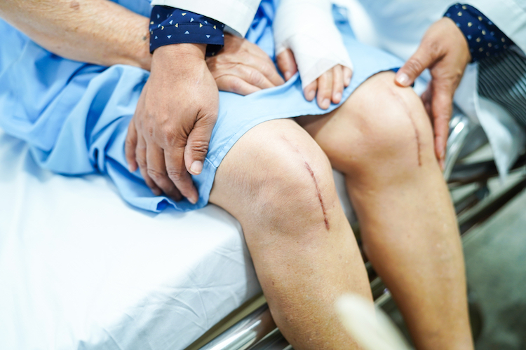 Post-surgical scars after knee replacement